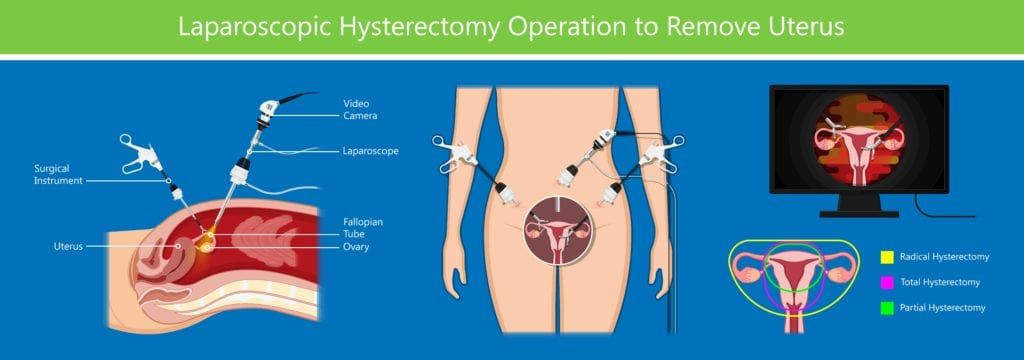 laparoscopic hysterectomy operation to remove uterus
