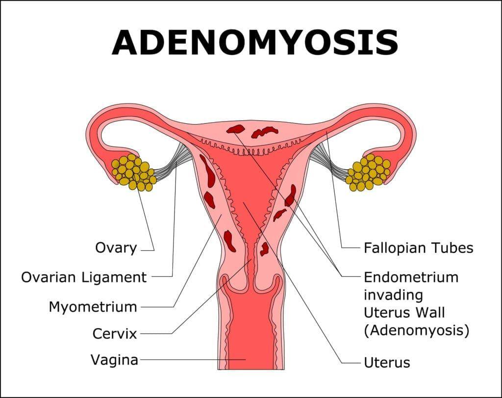 diagram of uterus with adenomyosis