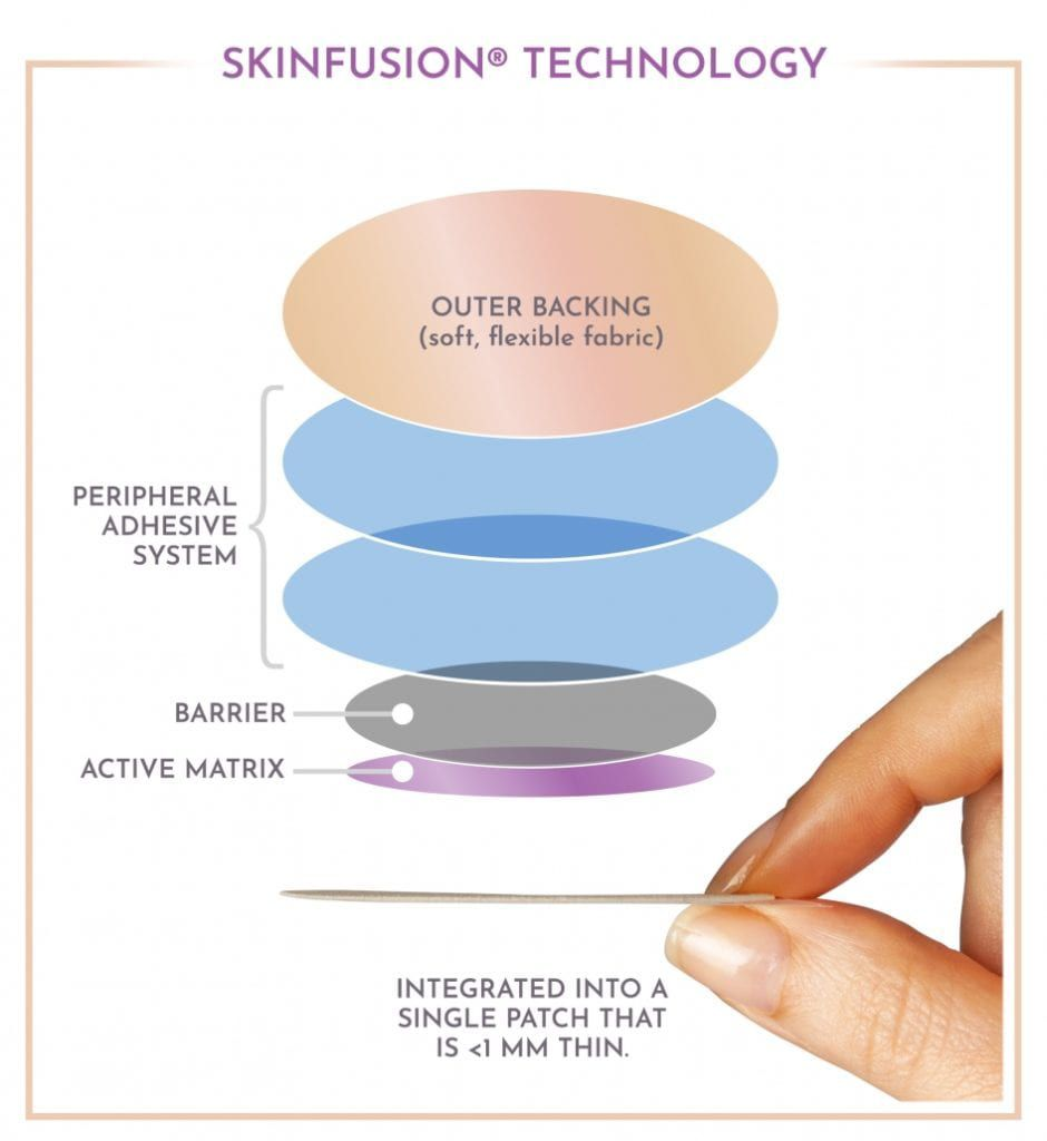 skinfusion technology by align technology