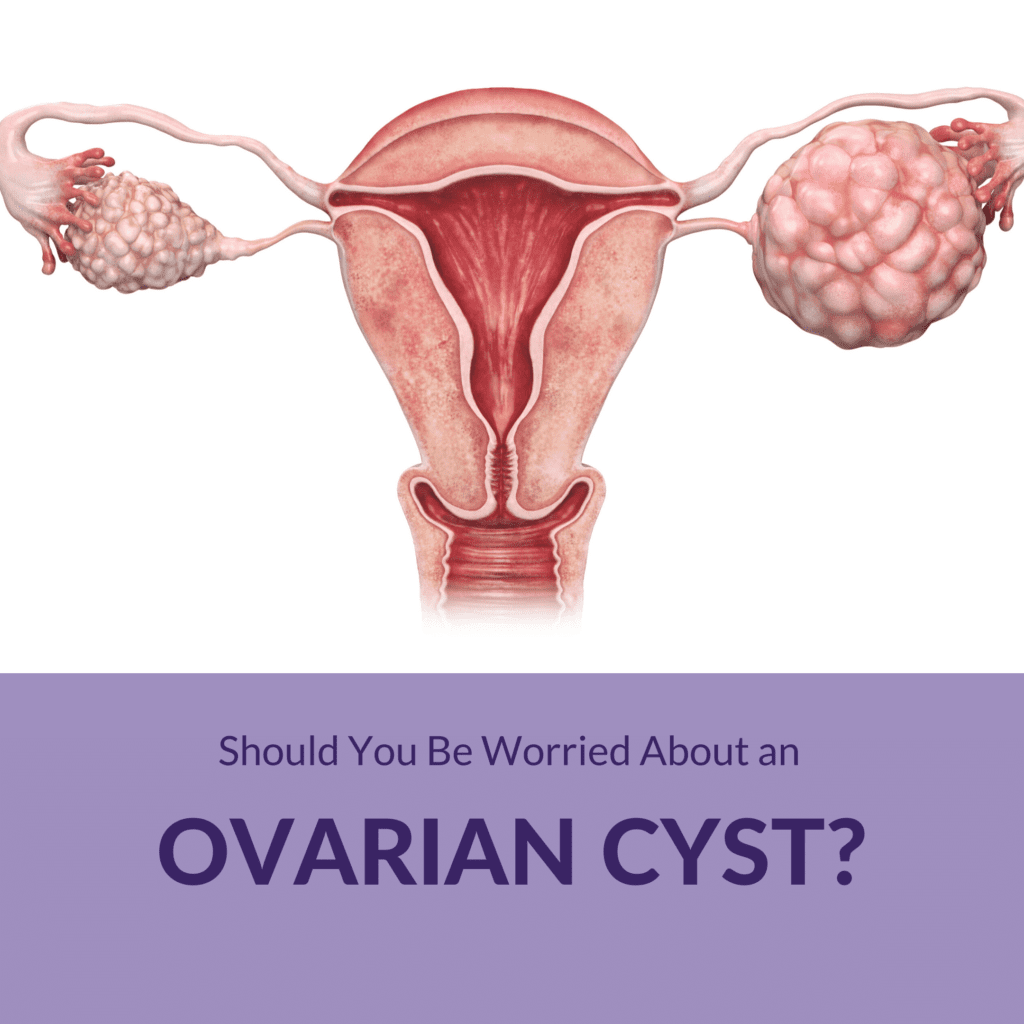 Should You Be Worried About An Ovarian Cyst